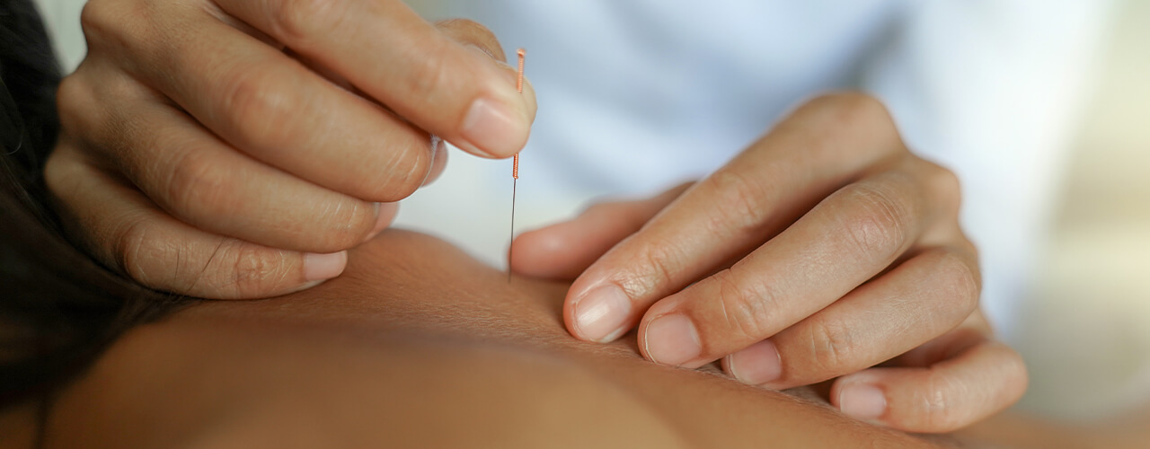 dry needling Idaho Spine and Sports Physical Therapy Boise & Meridian, ID
