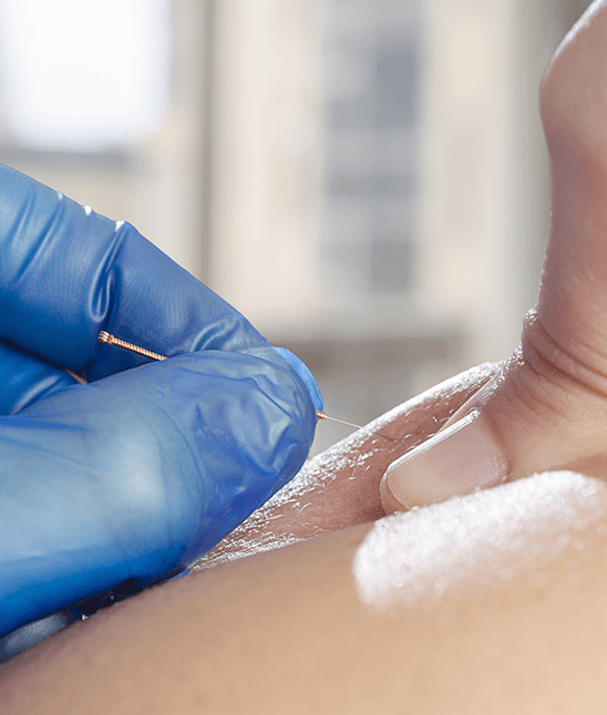 dry-needling-idaho-sport-spine-physical-therapy